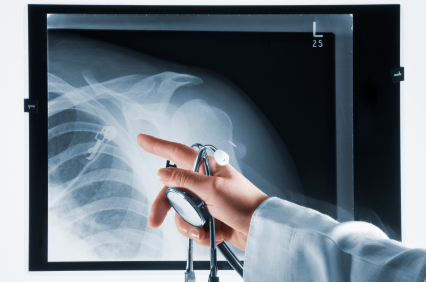 rotator cuff injury_phoenix orthopedic surgery